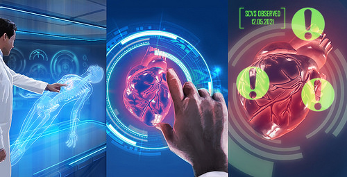 3D Holography, AI and Smart Medical Imaging and X-Rays for Doctors